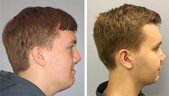 Craniofacial Center patient before and after photo